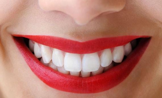 Denti-bianchi-600x600-c